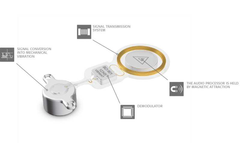 BONEBRIDGE Active Bone Conduction Implant