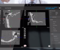 OTOPLAN: The Future of Otological Surgery