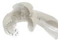Tip Fold-Over: Perimodiolar Cochlear Implant Electrode Arrays