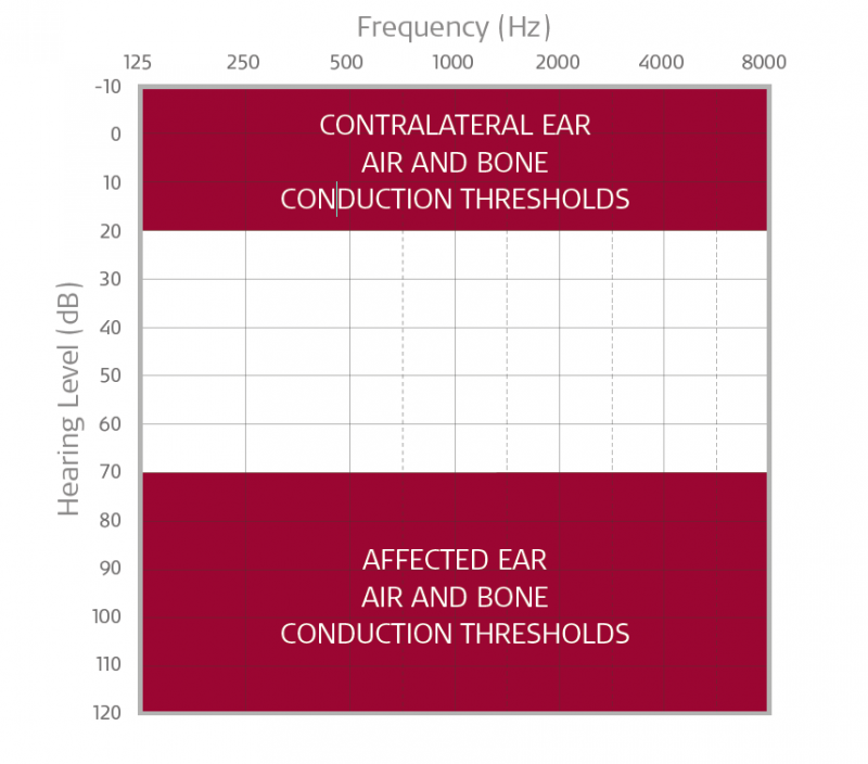 Audiogram BONEBRIDGE & ADHEAR single-sided deafness