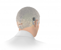 Bone Conduction Solutions for Single-Sided Deafness: ADHEAR & BONEBRIDGE