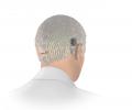 Bone Conduction Solutions for Single-Sided Deafness: ADHEAR & BONEBRIDGE