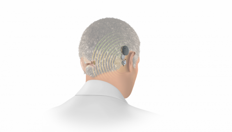 Bone conduction treatment for single-sided deafness
